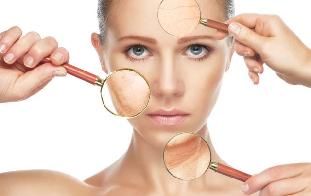 Botox®, ou Toxina botulínica ameniza rugas e linhas de expressão   Dra. Angélica Pacheco
