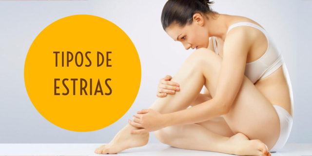 Estrias: tipos e tratamentos mais adequados | Dra. Angélica Pacheco