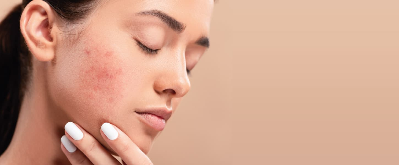 Como tirar manchas do rosto? Conheça os tratamentos!