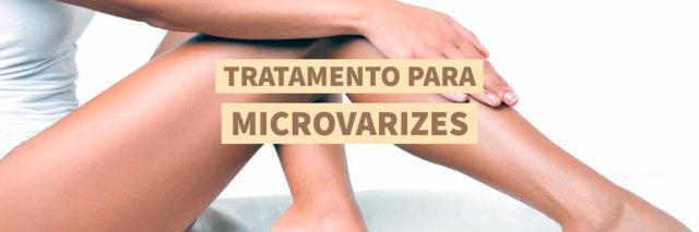 Escleroterapia: conheça o tratamento para microvarizes | Dra. Angélica Pacheco