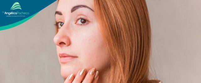 Acne da mulher adulta: como tratar?
