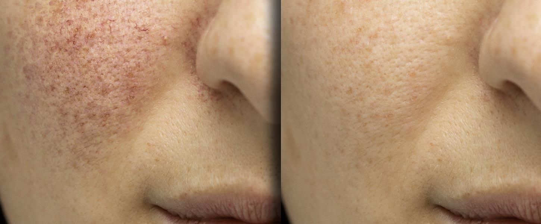 O uso do peeling químico no tratamento de manchas, rugas e cicatrizes. Acne.