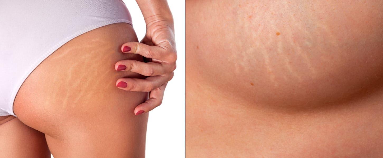 O uso do peeling químico no tratamento de manchas, rugas e cicatrizes. Estrias.