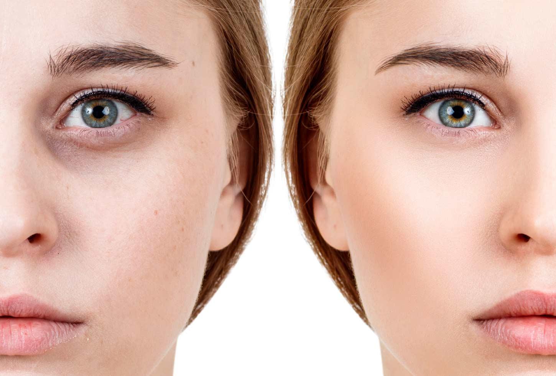 O uso do peeling químico no tratamento de manchas, rugas e cicatrizes. Olheiras.