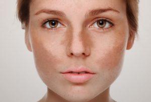 O uso do peeling químico no tratamento de manchas, rugas e cicatrizes. Melasma.