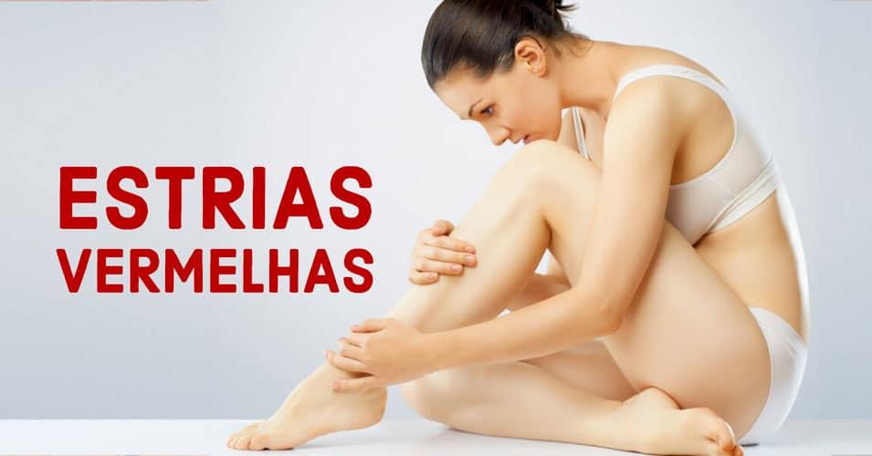 Estrias vermelhas: entenda como se formam e qual o tratamento   Dra. Angélica Pacheco