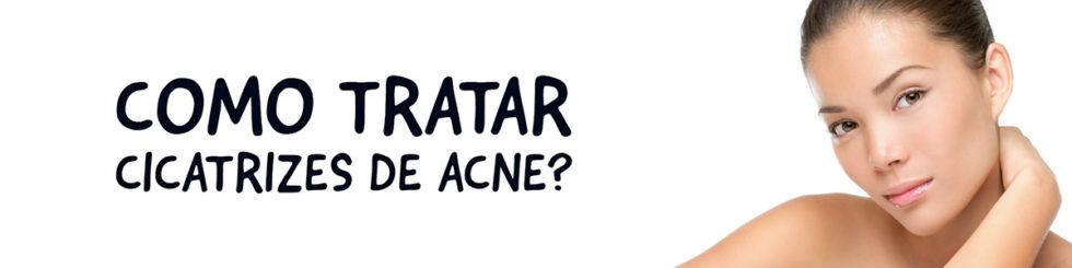 Como tratar as cicatrizes de acne? Conheça os procedimentos | Dra. Angélica Pacheco