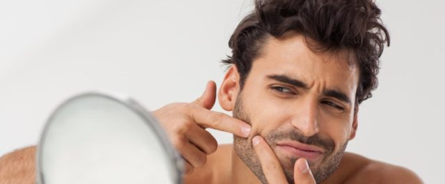 Tudo o que você precisa saber sobre a acne