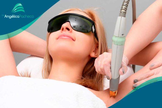 Métodos de depilação definitiva | Dra. Angélica Pacheco