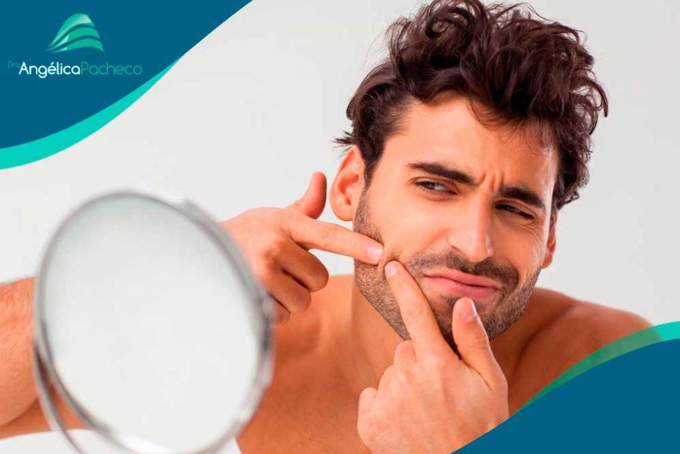 Tudo o que você precisa saber sobre a acne | Dra. Angélica Pacheco