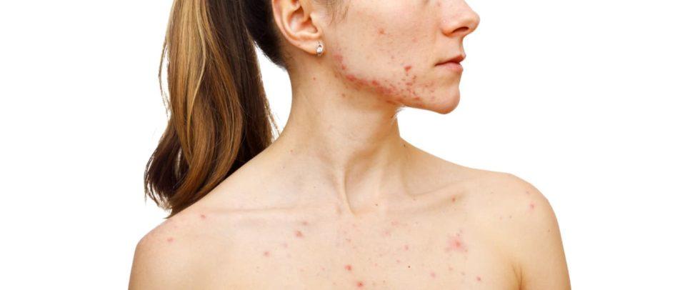 O pós-acne: saiba como se livrar das manchas e cicatrizes