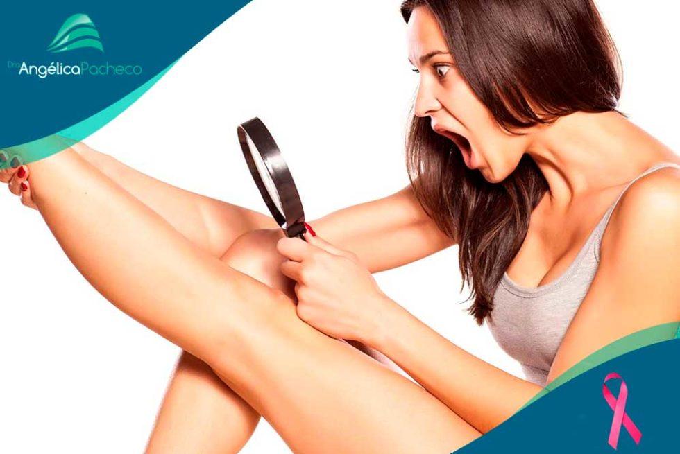 Tipos de varizes | Clínica de Dermatologia Estética - Dra. Angélica Pacheco