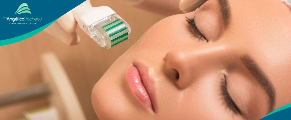 Dermarroler O Microagulhamento no Tratamento de Cicatriz de Acne e Rugas