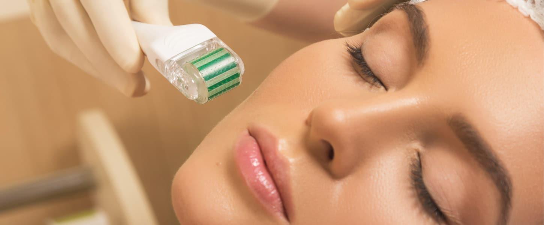 Dermaroller: o microagulhamento no tratamento de cicatriz de acne e rugas