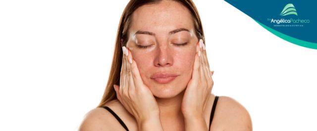 Melasma: saiba o que é e como tratar essa doença de pele